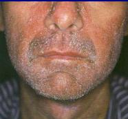 дерматозы при вич
